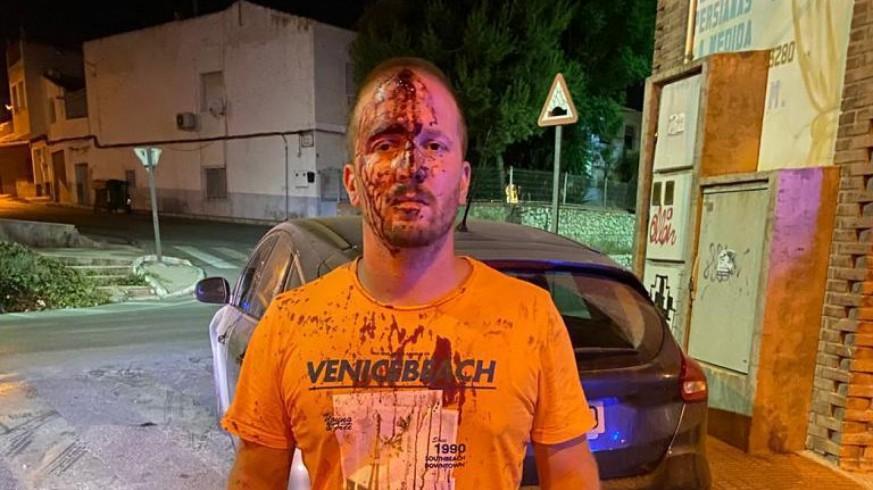 El herido tras la agresión sufrida en Totana. CEDIDA